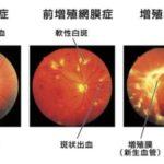目の病気の多くはメタボリックシンドロームが原因